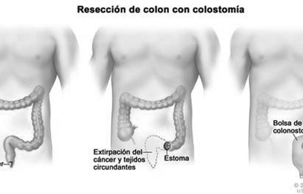 Salud  pix 8-13-14