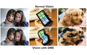 vision-with-diabetic-retinopathy--from Eylea