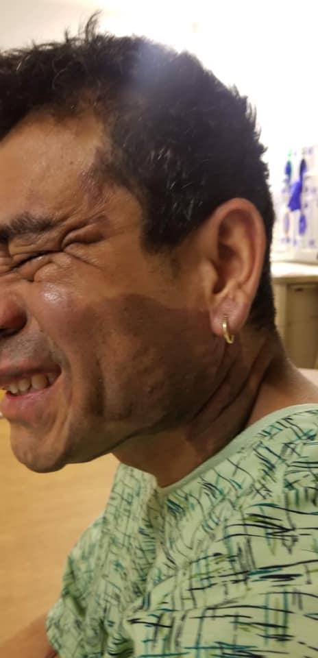 """De acuerdo a la Publicación está considerado como un ataque de odio. """"  Rabia,impotencia,tristeza me da este ataque racist, Mahud Villalaz peruano cliente y amigo estaba saliendo de un restaurante y un sujeto le hecho ácido en la cara fue atacado por un enfermo racista que aún está libre ,el estaba saliendo de un restaurante le han tirado ácido en la cara el está siendo atendido en el hospital st Mary's fue atacado en la 13 con la Cleveland en el restaurante que está al costado de ALDI El sujeto llevaba en su mochila una botella llena de ácido con premeditación""""."""